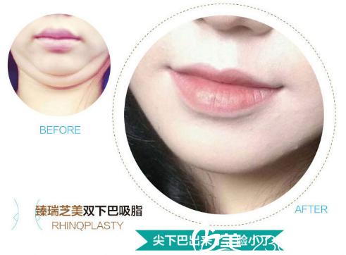 深圳臻瑞芝美医疗美容医院双下巴吸脂案例图片