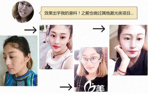 深圳臻瑞芝美医疗美容医院披靡哦啊激光祛斑案例图