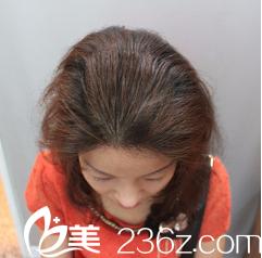 重庆时光植发好吗?半年前我去他家杨杰医生那儿做了毛发种植才知道!