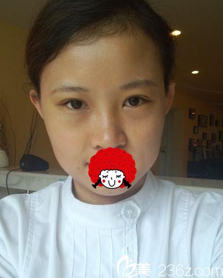 感谢黄石德尔美客美亚用双眼皮+祛眼袋拯救了我的肿泡眼 从此跟双眼皮贴说拜拜