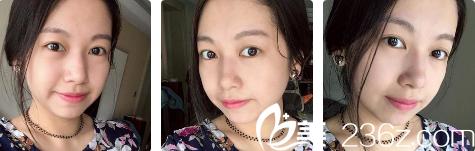 1月11日西安高一生整形医院张林宏医生做的全切(去脂去皮)+袪眼袋,还未消肿