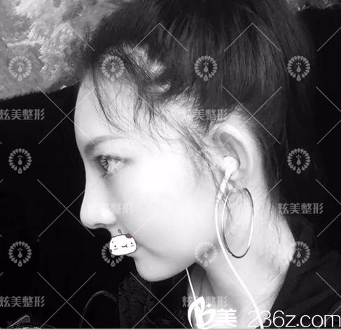 看我在在北京炫美做膨体垫下巴+自体软骨鼻综合第28天真实效果