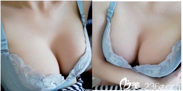 我在北京当代找焦大凯做了曼托330CC水滴型假体隆胸朋友说我好娇艳