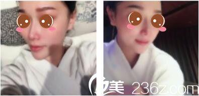 之前做了线雕隆鼻维持时间不长现在我去上海伯思立找王艳做了鼻综合后