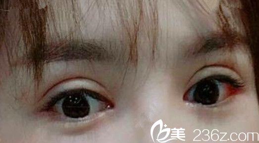 晒为了修复失败双眼皮,我在亳州缔美整形做了眼综合手术后1-9天恢复过程