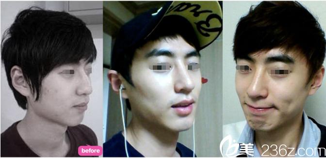 看韩国ID整形金一焕院长改善我的歪鼻子+鹰钩鼻 即便是男生也要追求芭比线条鼻高颜值