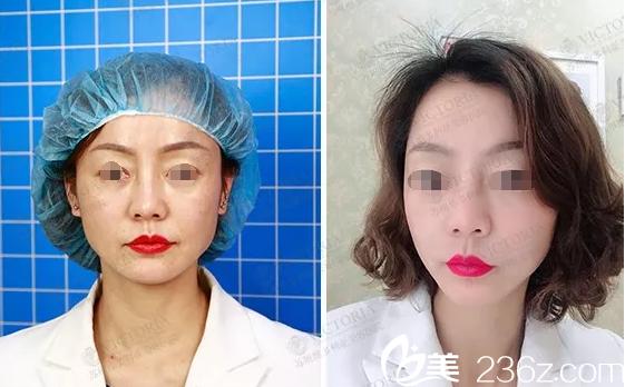 在苏州维多利亚注射瘦脸针术前术后对比
