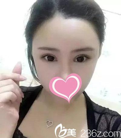 这有个宜春华美张万权的双眼皮手术案例,想了解的妹子看看吧!