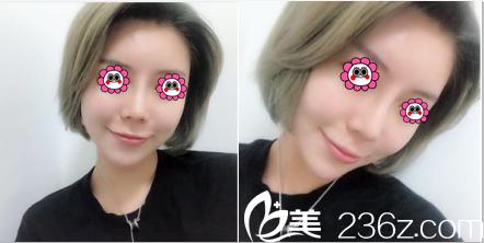 之前我在北京新星靓做脂肪丰胸效果挺满意这次谈谈找张阳做鼻综合经历和真实效果