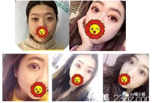 北京惠平霖双眼皮案例