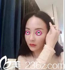 前后面诊了周敏茹和连喜艳我决定在北京惠平霖做多维艺术全脸深层线雕今天来聊聊效果