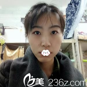 """天津金天丽金振娱韩式3D无痕祛眼袋将我从""""大妈""""变少女"""
