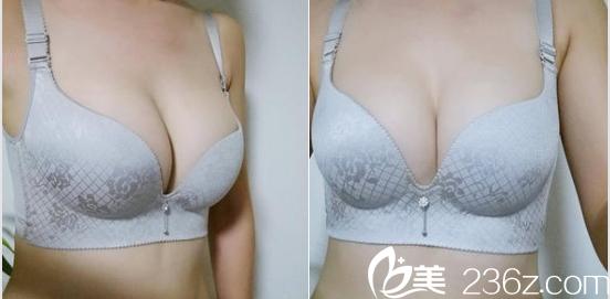 给你看我在北京京美会找刘成胜花了大几万做胸部硅胶假体取出+脂肪丰胸第68天真实效果