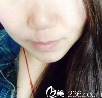 我在郑州欧华大商新玛特那个店做的光子嫩肤和祛斑 服务超好还便宜