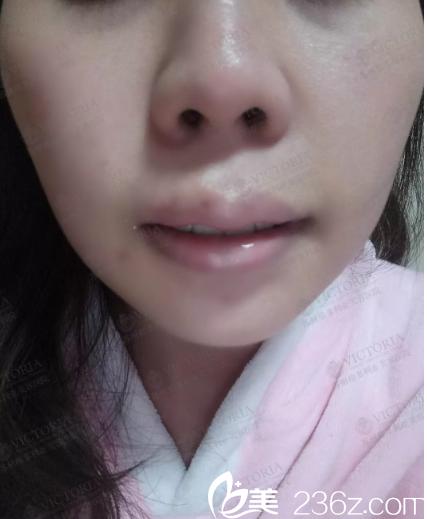 一周拆线唇部恢复中