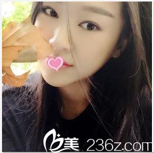 我只是在北京蕾士悦找李海兵做了切开双眼皮修复+开眼角朋友说效果像原装一般