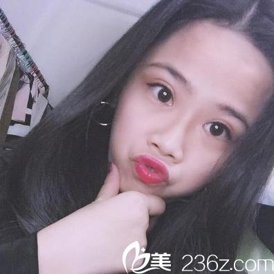 之前找深圳广和于国东做的双眼皮很好看准备再去找尹卫民教授做个隆鼻子