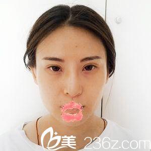 奥美定取出隆鼻失败的我到天津紫洁吴景泉处做假体综合隆鼻终圆美鼻梦