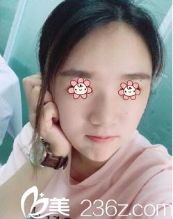 第三军医大学附属西南医院整形科公开曹川医生自体脂肪丰泪沟垫下巴案例。