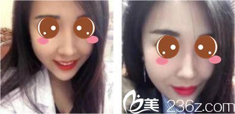 我的鼻子是在上海德琳找宋鸿植做的鼻综合,一个月就恢复美美哒