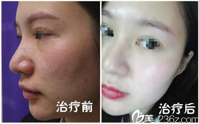 面部红血丝严重的妹子分享到南京连天美找郝思辉院长做O4元素破茧疗法拯救敏感肌的血泪史