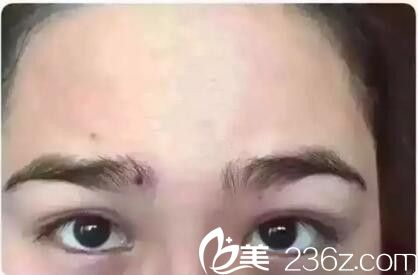 她们在郑州美葩做的20分钟签约祛皱 抬头纹和鱼尾纹真的不见了
