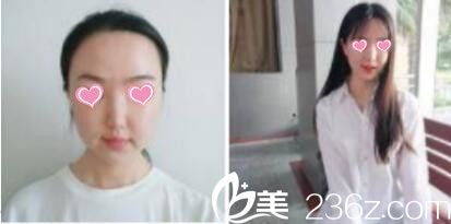 刚得了一份上海九院激光美容科,皮肤美容和抽脂塑形全新价格表,崔海燕和曹卫刚真人案例效果图