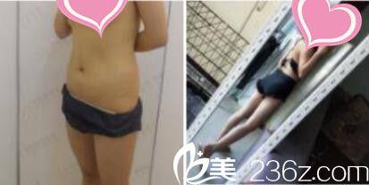 上海九院整形美容科瘦脸除皱瘦脸针真人案例