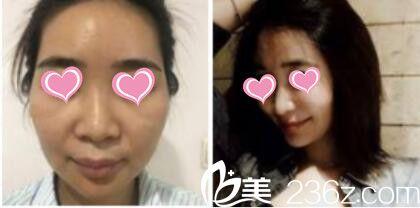 上海九院整形美容科自体脂肪面部填充真人案例