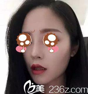 在西宁华美找高清华做的硅胶隆鼻+鼻小柱延长,两个月鼻型基本固定了,很漂亮