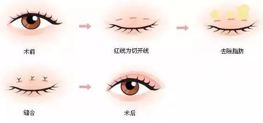 长春莱美韩式双眼皮