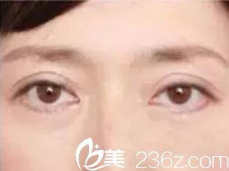 有眼袋看上去没精神?长春莱美祛眼袋手术让你重获美丽大眼