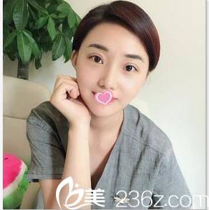 公开我在北京长虹找张守玲做切开双眼皮+外切法祛眼袋第31天真实效果