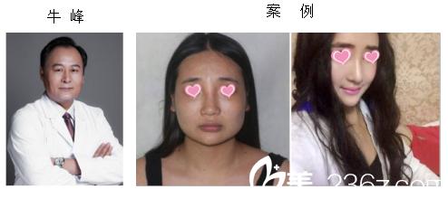 我拿到一份北京八大处磨骨下颌角改脸型医生名单含案例和近期整形优惠价格
