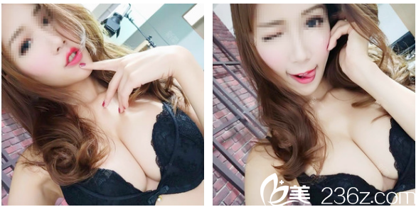 我经过朋友介绍选择深圳富华医疗美容医院胡俊杰医生做了手感很好的曼托假体隆胸
