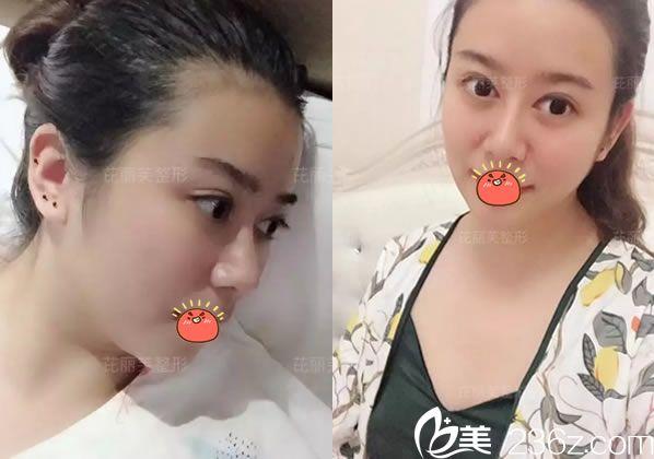 大家好,我叫瑶瑶,找金华芘丽芙徐斌主任做光纤溶双下巴和半肋骨鼻综合已经3个月了