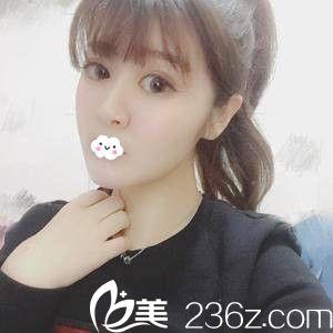 天津知妍医疗美容门诊部薛云鹏术后照片1