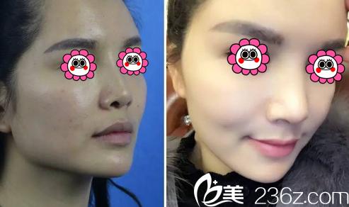 北京赫丽颜鼻综合案例