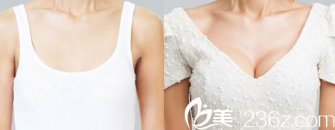 北京赫丽颜假体隆胸案例