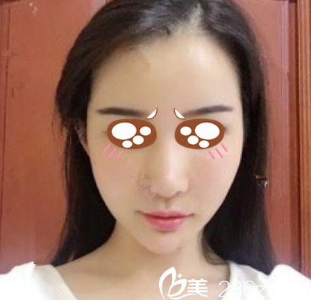 趁上海九院曹卫刚在蚌埠唯美整形坐诊,我去唯美做了自体脂肪全脸填充