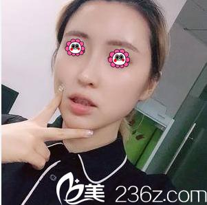 我在北京赫丽颜找杨庆华做了面部脂肪填充也没花多少钱