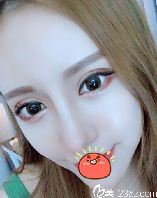 找宁波童颜翁志宇做了双眼皮和隆鼻手术,现在恢复2个月疤痕不明显效果自然了