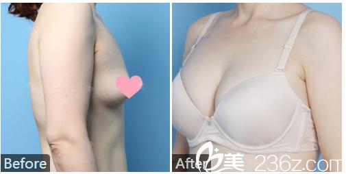 广州利美康粤美整形医院何瑶假体隆胸案例图