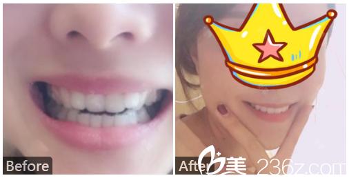 广州利美康牙科医院方起骏牙齿矫正案例对比图