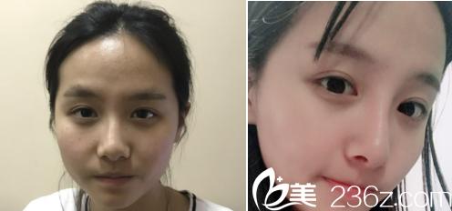 杨阳医生假体隆鼻案例