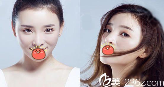 想到杭州时光做隆鼻手术的可以看看黄良飞主任帮我做线雕隆鼻和脂肪填充半年效果