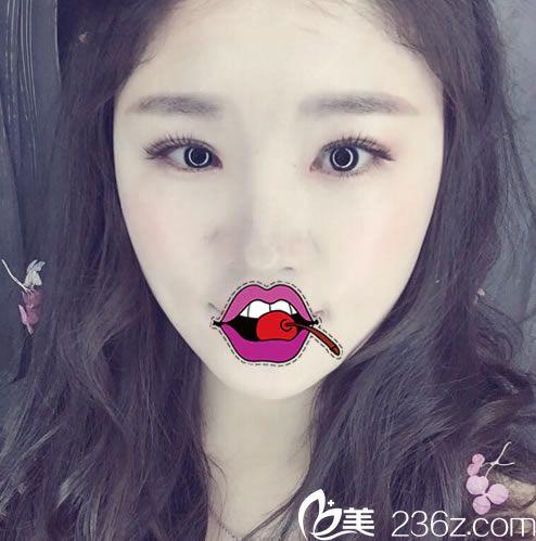 看我在杭州时光宋茂启这做的韩式全切双眼皮和开眼角2个月效果怎么样
