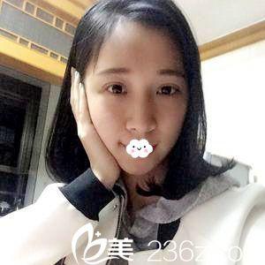 不顾家人反对到天津紫洁割双眼皮,吴景泉真人案例术后1月恢复效果