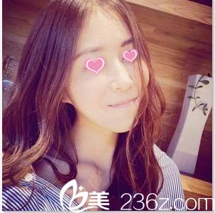公开我在北京八大处找陈光宇注射肉毒素瘦脸第28天真实效果
