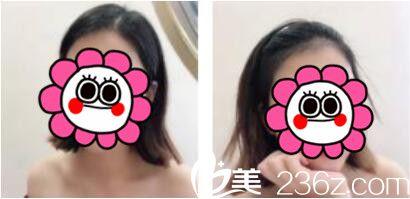 六个月前去韩国江南艺丽人找李承宰做了发际线种植,晒晒术后恢复效果图